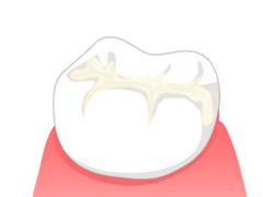予防歯科メニュー
